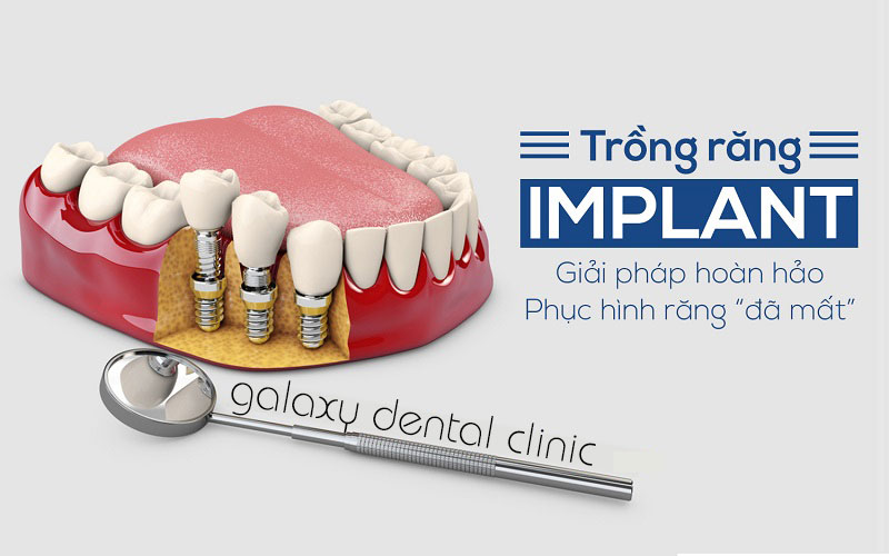 https://galaxydental.vn/img/galaxy-dental-Cay-ghep-implant-co-bien-chung-khong.jpg