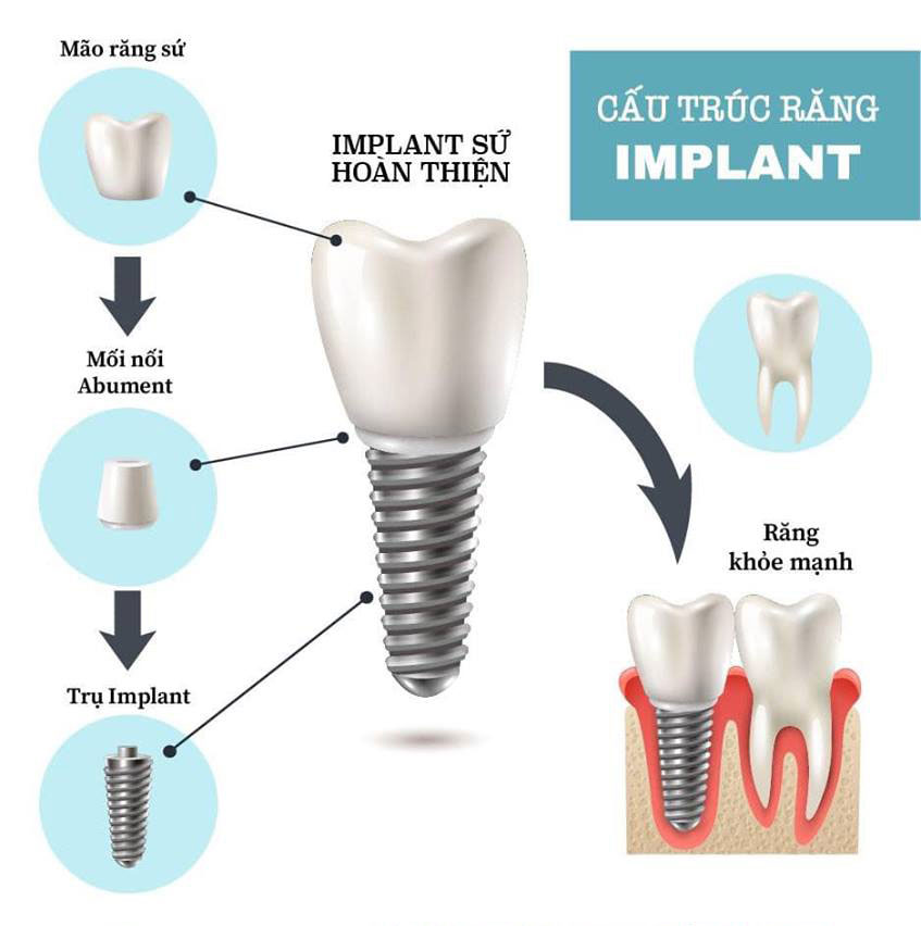 https://galaxydental.vn/img/galaxy-dental-cau-truc-implant-02.jpg