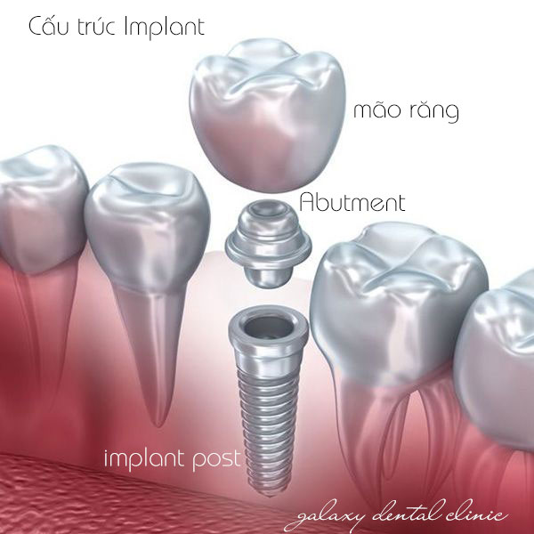 https://galaxydental.vn/img/galaxy-dental-cau-truc-implant.jpg