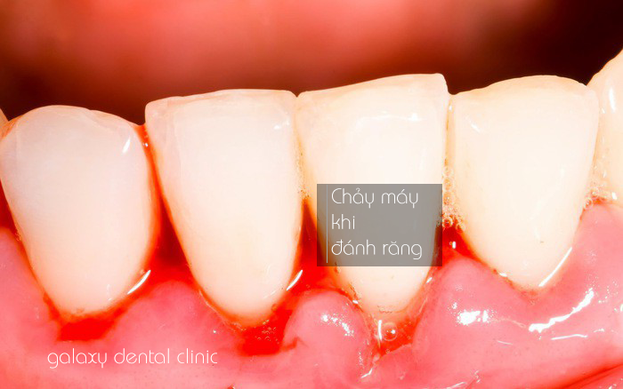 https://galaxydental.vn/img/galaxy-dental-chay-mau-khi-danh-rang.png