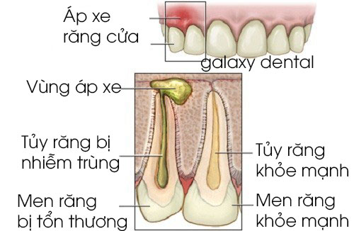 https://galaxydental.vn/img/galaxy-dental-co-che-gay-ra-ap-xe-chan-rang.jpg