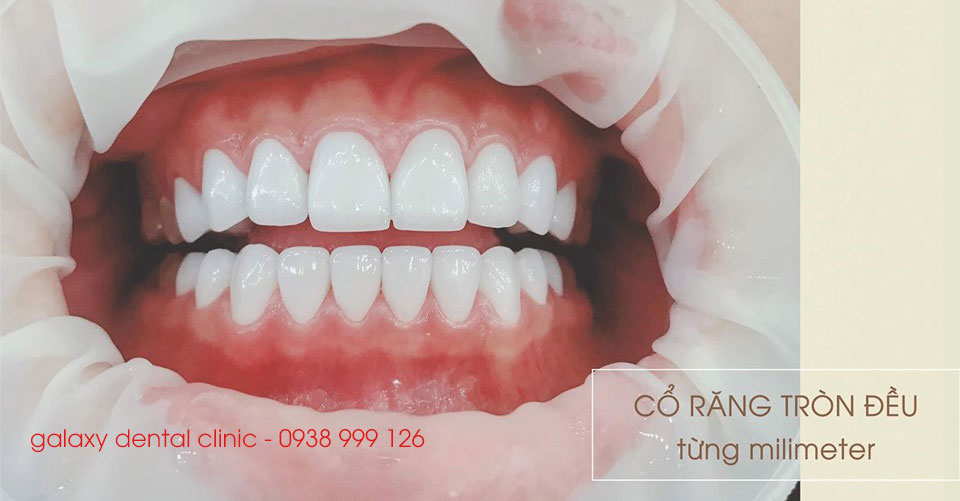 https://galaxydental.vn/img/galaxy-dental-co-rang-tron-deu.jpg