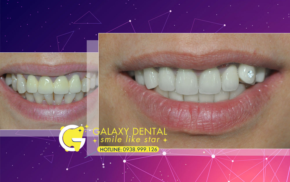 https://galaxydental.vn/img/galaxy-dental-dieu-tri-rang-cua-bi-lech-chi-Hieu.jpg