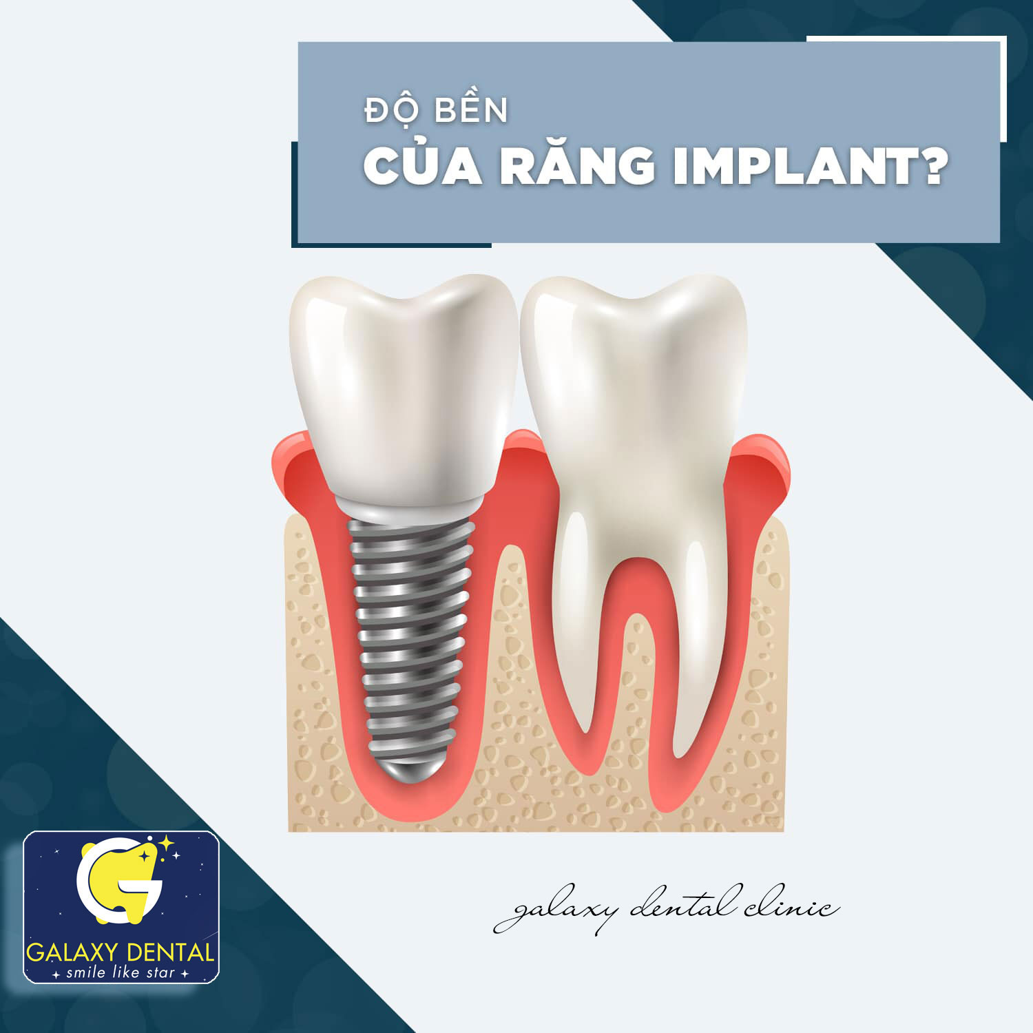 https://galaxydental.vn/img/galaxy-dental-do-ben-cua-implant.jpg