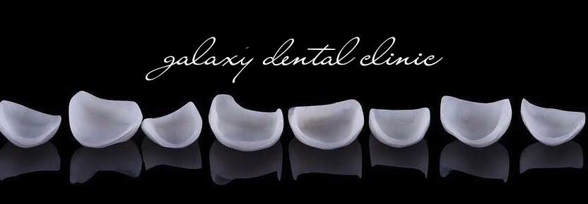 https://galaxydental.vn/img/galaxy-dental-mat-dan-su-veneer-sieu-mong.jpg