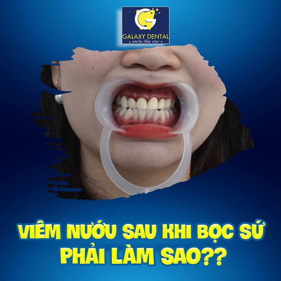 https://galaxydental.vn/img/galaxy-dental-viem-nuou-sau-khi-boc-rang-su.jpg