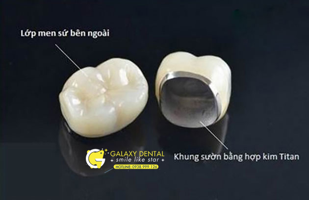 https://galaxydental.vn/img/rang-su-titan.jpg